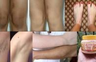 How To Lighten Your Dark Body Parts – Lighten Dark Knees – Elbows & Underarms