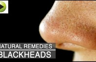 Skin Care – Blackheads – Natural Ayurvedic Home Remedies