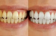 Teeth Whitening By Simple Beauty Secrets