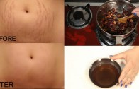 How To Remove Pregnancy Stretch Marks Works 100% – Cure Injury & Burn In 3 Days Miracle Oil