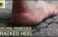 Skin Care – Cracked Heel – Natural Ayurvedic Home Remedies