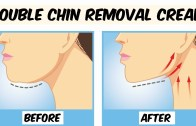 How To Get Rid of Double Chin – Double Chin Removal Cream – Remove Sagging Jawline