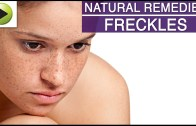 Skin Care – Freckles – Natural Ayurvedic Home Remedies
