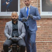 Escaping Baldness with Scalp Micropigmentation