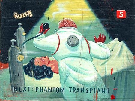 heshka.lg.transplant.jpg