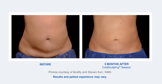 Before and After - Coolsculpting Results