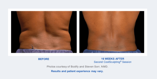 Before and After - Coolsculpting Results Back