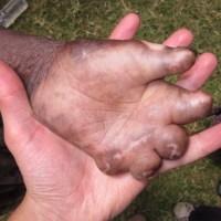 Donant la mà a la lepra / Dando la mano a la lepra