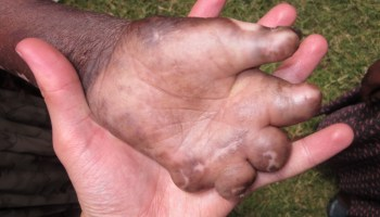 Abrazando a las personas con lepra africa etiopia gambo