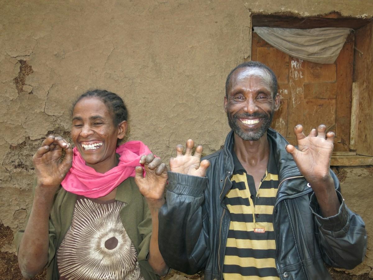 El Amor en los tiempos de la lepra: ella tampoco podía regresar a su pueblo, ella tampoco podía compartir su vida con gente sin lepra, nos unió la marginación por nuestra lepra alegria gambo alegria sin fronteras dr alegria etiopia