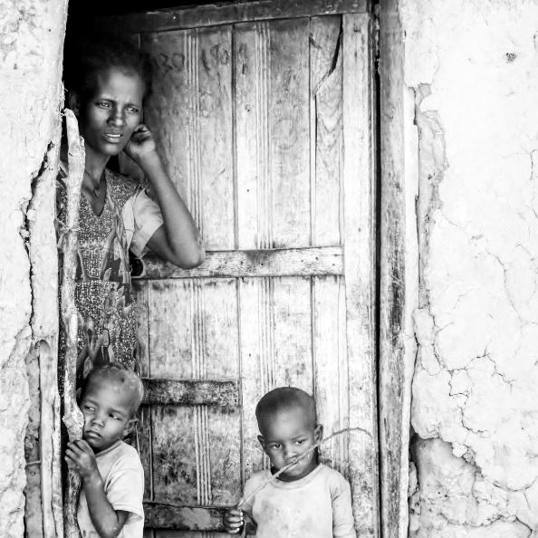 Robar a los más pobres para dárselo a los más ricos alegria gambo alegria sin fronteras etiopia