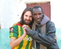 Rompiendo Estigmas Contra La Lepra: Integrando A Las Personas Afectadas De La Enfermedad De Lepra Mediante La Formación Comunitaria En La Comunidad Rural De Gambo, Etiopía