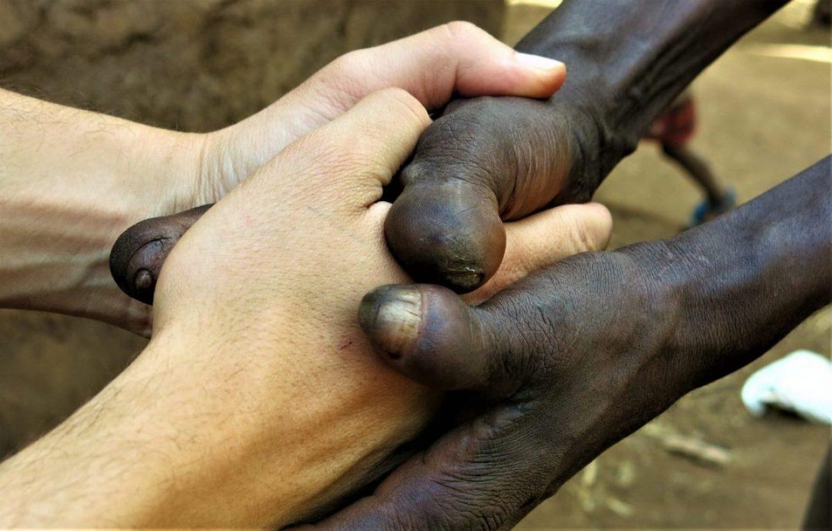 Que ser blanco no signifique nada africa
