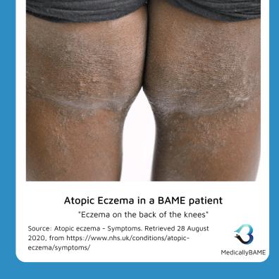Medically BAME: Atopic Dermatitis medicallyBAME