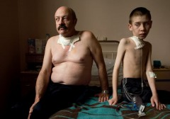 victimes-du-nucleaire_thyroide_cancer.jpg