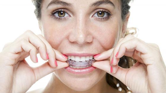 Капы для наполнения составом, отбеливающим зубную эмаль
