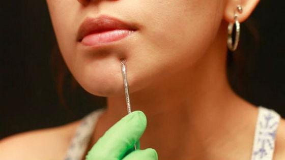 Механическое очищение кожи дма