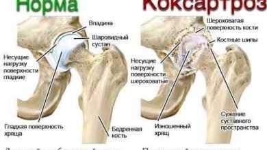 Photo of Изменения в тазобедренном суставе при коксартрозе