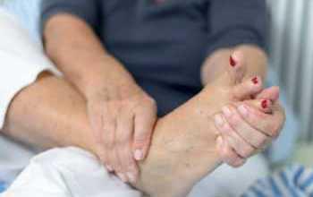 Мозоль на пятке: лечение в зависимости от вида медикаментами и народными средствами