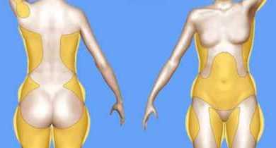 Вот почему скапливаются жиры в области подмышек, талии, ногах, бедрах, рук и спине