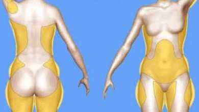 Photo of Вот почему скапливаются жиры в области подмышек, талии, ногах, бедрах, рук и спине