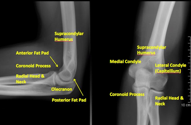 X Arm Break Rays Elbow