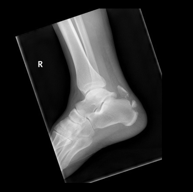 Ankle Calcaneal Avulsion Anterior View