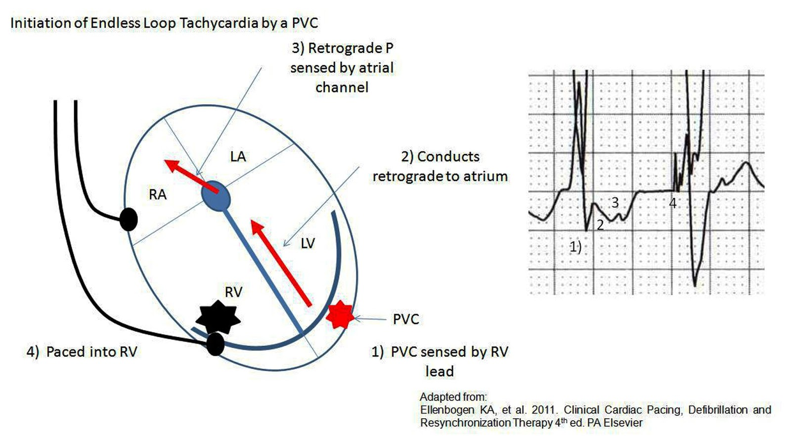 Pacemakers Basic Advanced Concepts Core Em