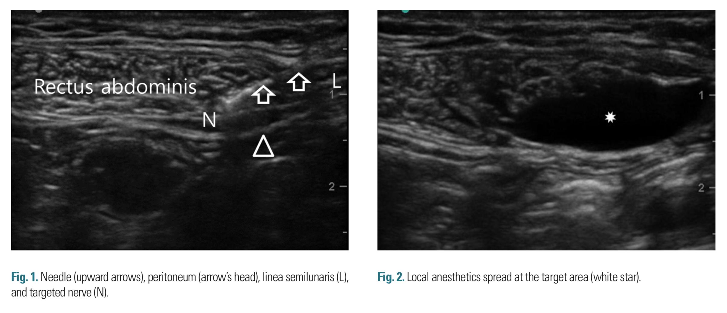Abdominal Ultrasound Landmarks