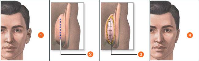 cirugia otoplastia Corporal Core