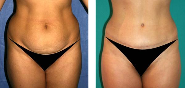 Abdominoplastia - corporal core