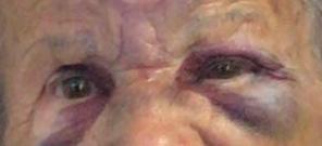 Homem de 20 anos agride e deixa ferida idosa de 83 anos em Morrinhos. A Polícia Civil o prendeu em flagrante!