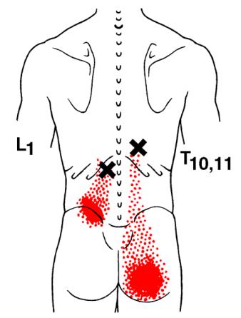 Longissimus-Thoracis