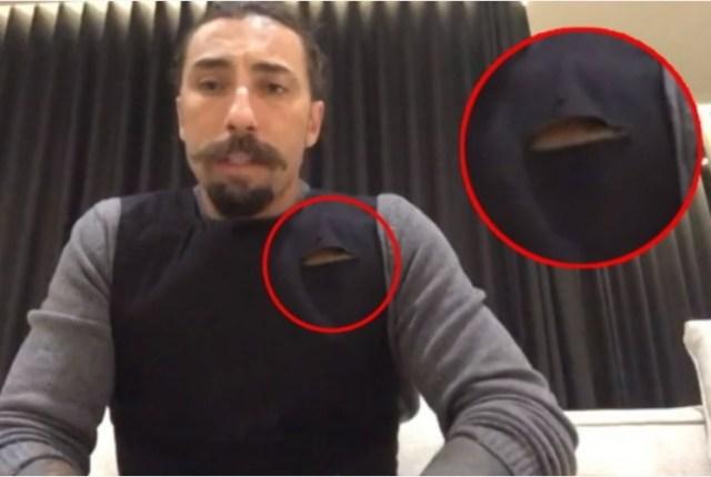 Il segno di una coltellata sul giubbotto indossato da Brumotti