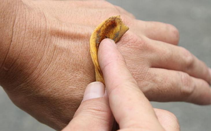 Remedio casero para la psoriasis mediante cascara de plátano