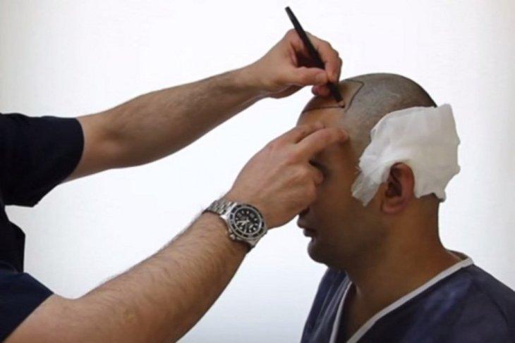 Implante de cabello para solucionar la alopecia