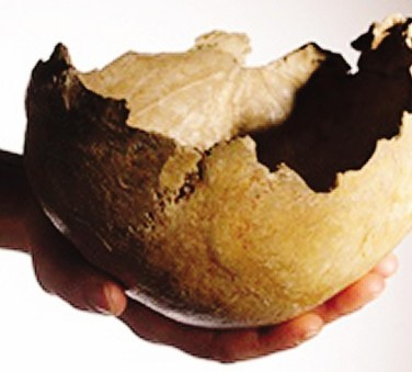 Cranio Donizetti