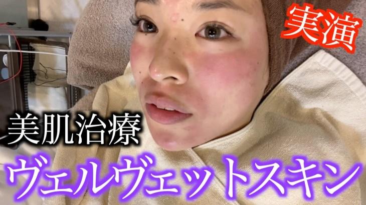 【美肌治療】ダーマペンとマッサージピールで毛穴とくすみ改善!【ヴェルヴェットスキン】