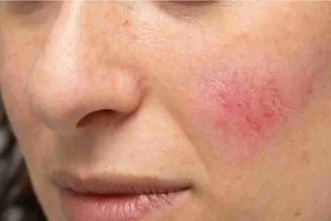 piel rosácea