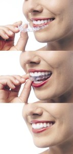 placement of Invisalign aligners