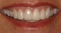 all-porcelain crowns by Houston cosmetic dentist Dr. Coleman are stunning