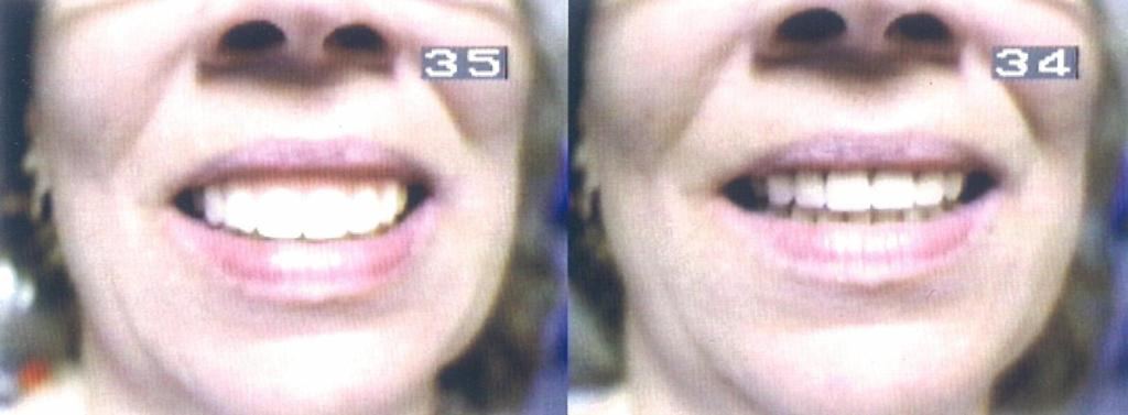 Before and After Aesthetic Smile Improvement 1