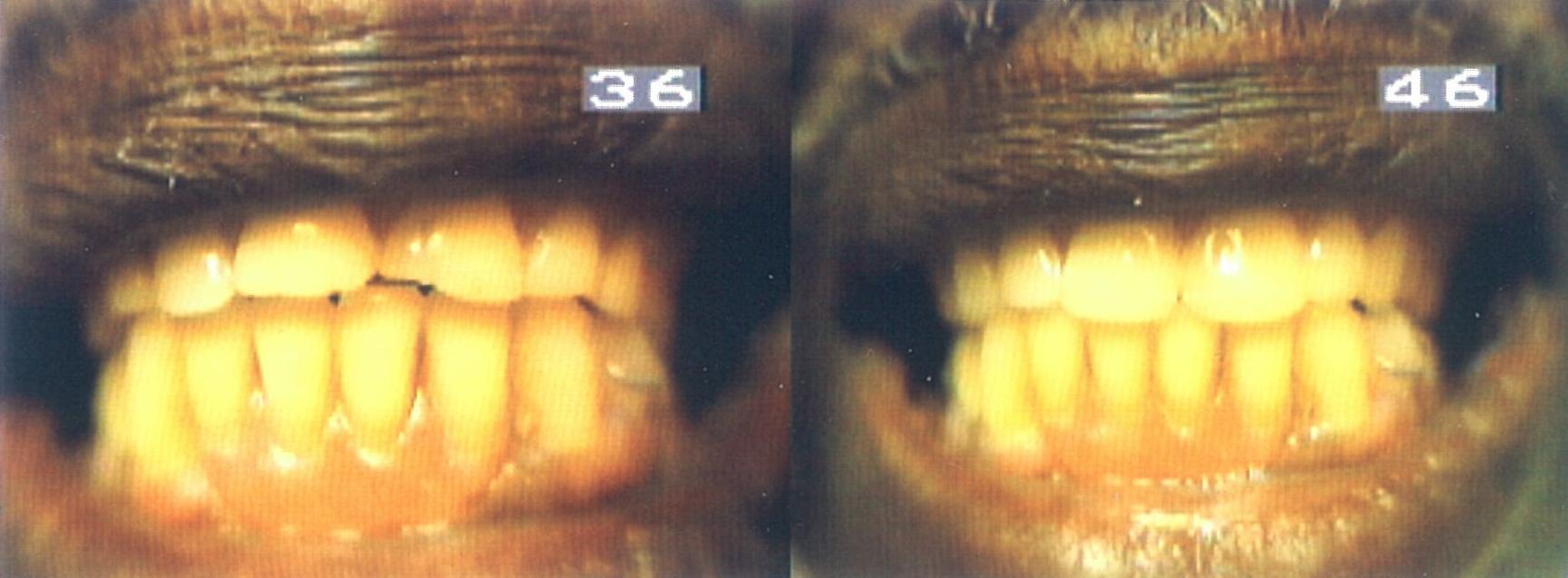 Before and After Direct Composite Restoration f Complete Upper denture