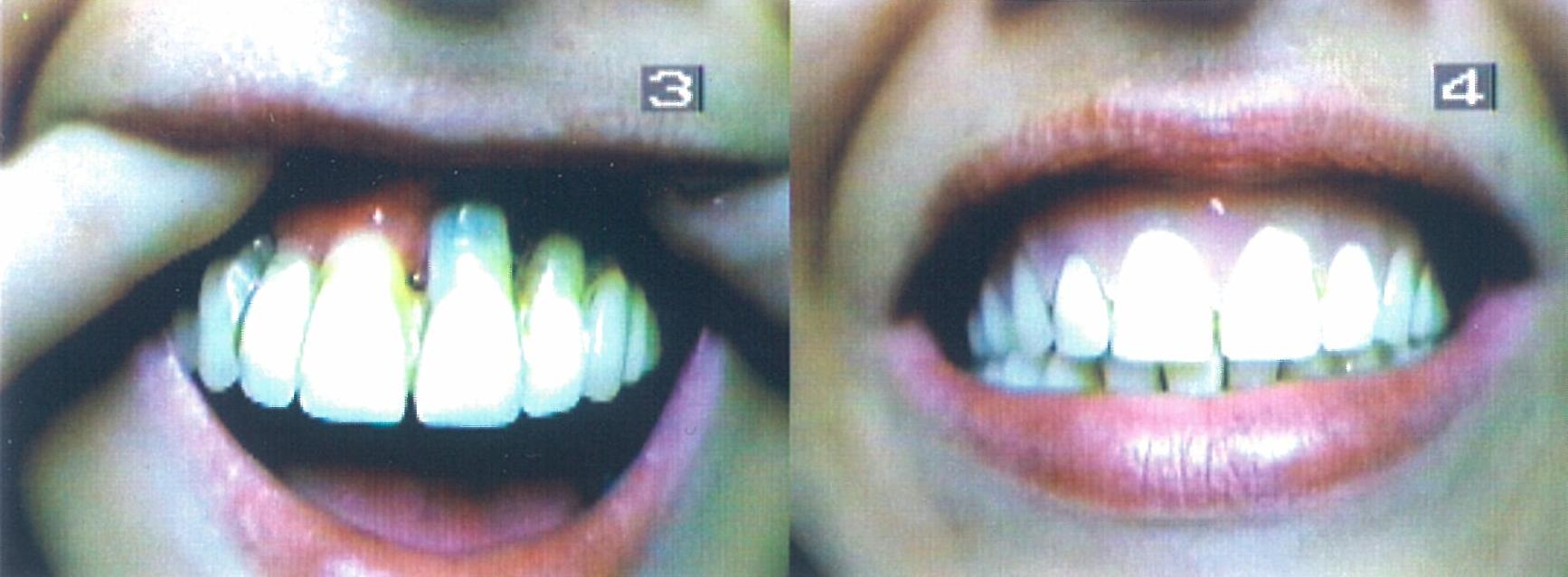 Before and After Flexible Implant Facing