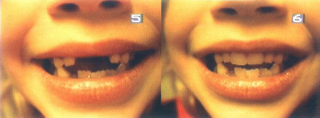 Before and After Pediatric Denture
