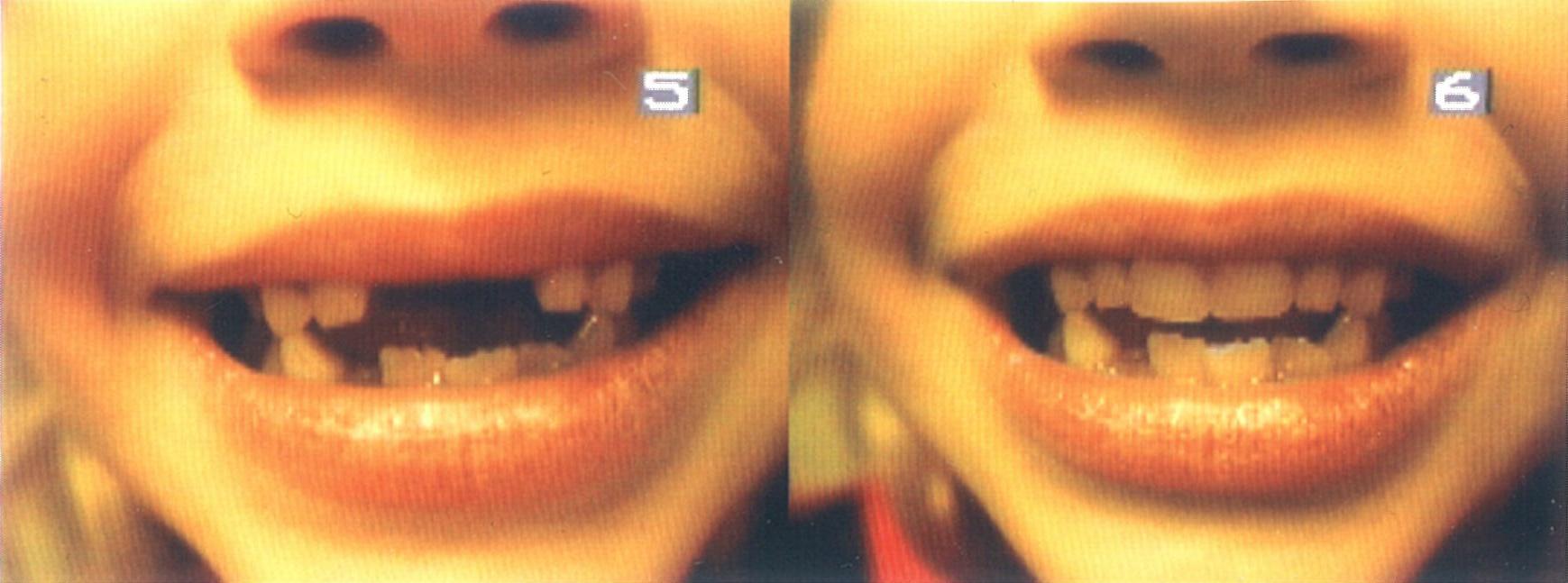 Before and After Pediatric Denture repair