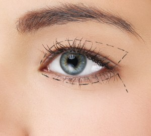 Los Angeles Eyelid Surgery