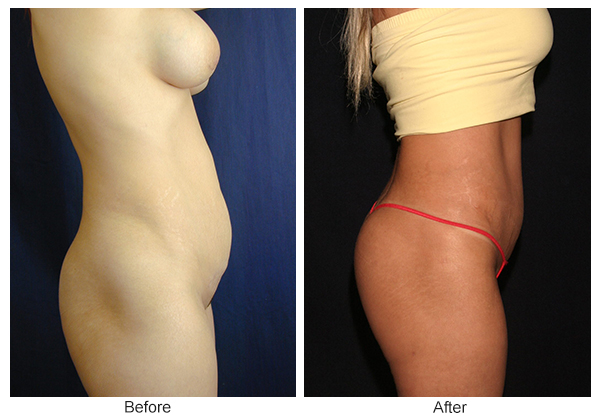 Before & After Buttock Augmentation 4 – L