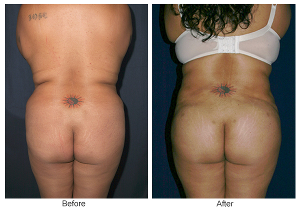 Before & After Buttock Augmentation 5 – F
