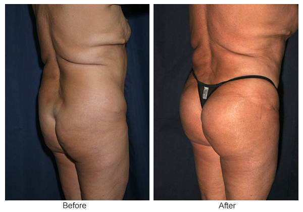 Before & After Buttock Augmentation 7 – LQ